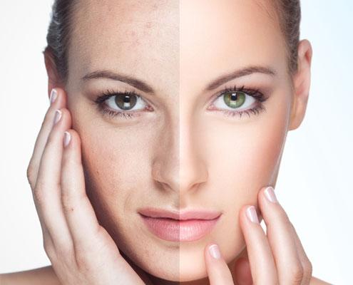 Naturalne metody biostymulacji skóry